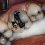 Răng sâu nặng có cần thiết phải nhổ hay không?