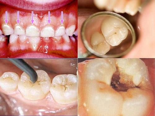 Quy trình trám răng sâu có lâu không?