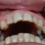 Cách nào khắc phục răng sâu bị mẻ tốt nhất?