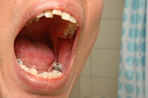 Nhổ răng số 8 có đau không?1