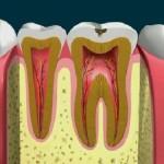 Hàn trám răng lấy tủy có đau không?
