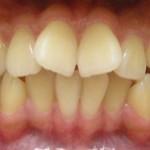 Nhổ răng cửa mọc lệch có nguy hiểm hay không?