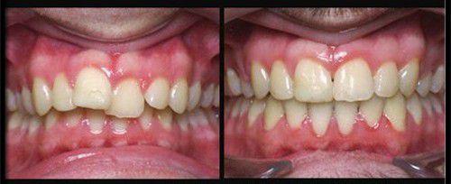 Không nên làm gì sau khi làm răng sứ