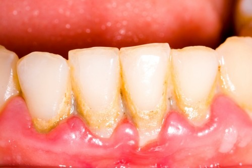 Những điều bạn nên biết về phương pháp lấy cao răng