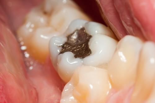 Quy trình hàn răng sâu hoàn hảo với công nghệ Le.Max Hoa Kỳ