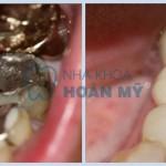 Răng bị sâu vào tủy có trám được không?