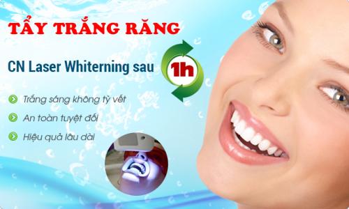 rang-bi-vang-phai-lam-sao-cho-trang-bong-2