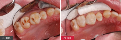 Multiple-cavities-in-adjacent-teeth