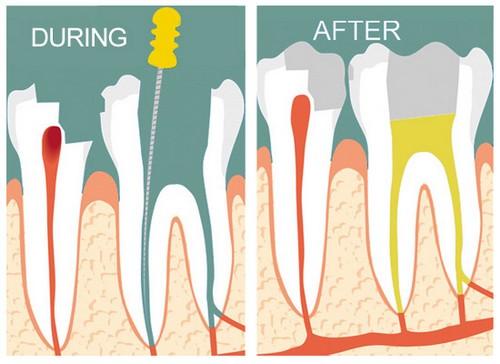 Quy trình lấy tủy răng có lâu không?