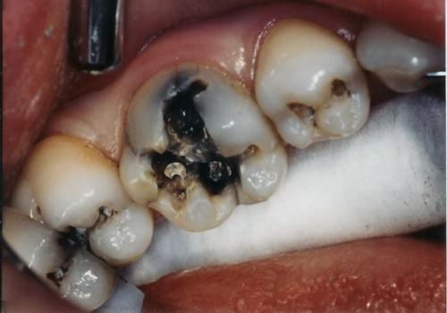 Cách phòng bệnh sâu răng hiệu quả nhất