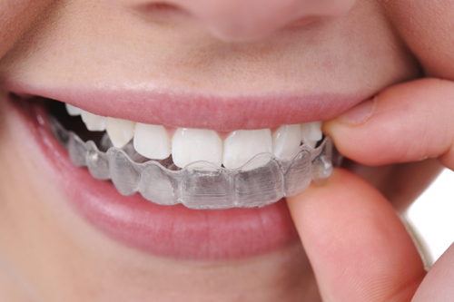Tại sao răng ê buốt sau khi tẩy trắng?