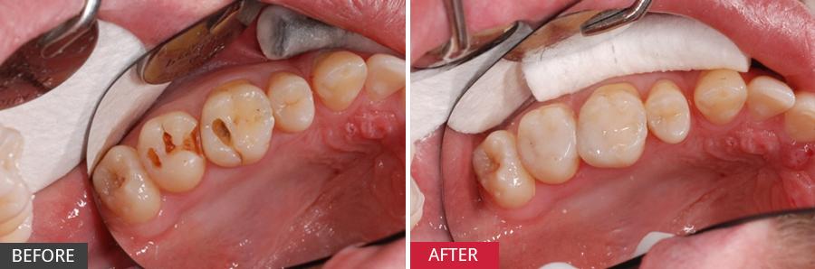 Bọc sứ răng sâu có phải lấy tủy không