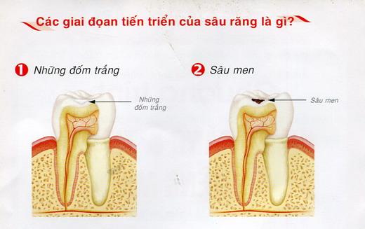 Có nên nhổ chân răng sâu hay không?