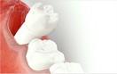 Điều trị bệnh lý răng miệng 12