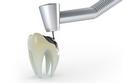 Điều trị bệnh lý răng miệng 9