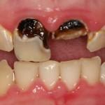 Giá chữa răng sâu tại Nha khoa Hoàn Mỹ là bao nhiêu?