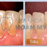 Lấy cao răng có làm trắng răng hay không?