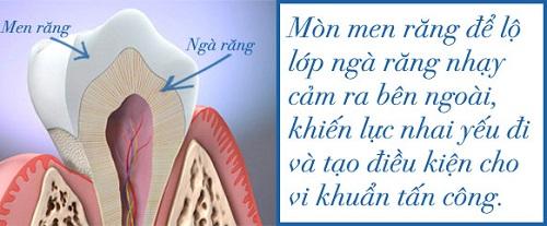 nguyen-nhan-hien-tuong-e-buot-chan-rang-va-cach-khac-phuc-3