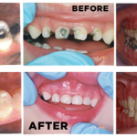 Nhổ răng giá bao nhiêu tại Nha khoa Hoàn Mỹ?
