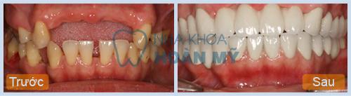 Những tác hại của việc mất răng gây ra