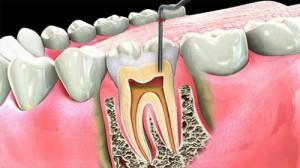 Rút tủy răng hàm có đau nhiều không?