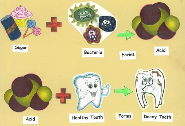 Bệnh nhân nên ăn gì khi bị sâu răng?