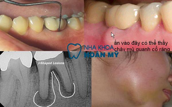 Một số điều cần biết về bệnh viêm chân răng 2