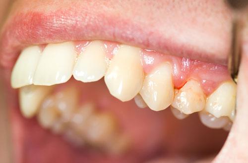 Nguyên nhân chủ yếu của trình trạng sưng chân răng là gì? 1