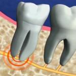 Nhiễm khuẩn sau khi nhổ răng khôn có nguy hiểm hay không?