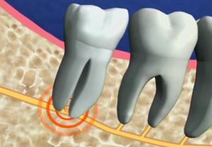 Trồng răng giả tiến hành thế nào