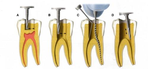 Những thắc mắc trong lấy tủy răng thường gặp