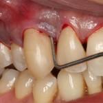 Răng bị áp xe cần được điều trị như thế nào?