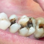 Răng đã lấy tủy thì tồn tại được bao lâu?