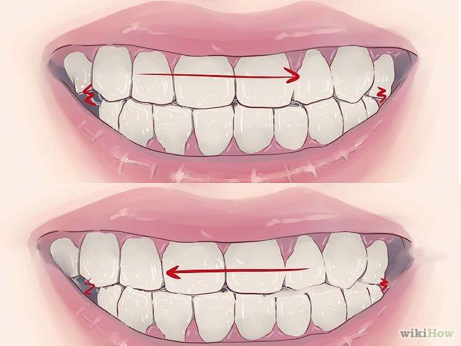 Tác hại của tật nghiến răng bạn nên biết  2