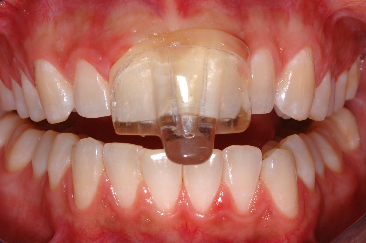 Tác hại của tật nghiến răng bạn nên biết  3