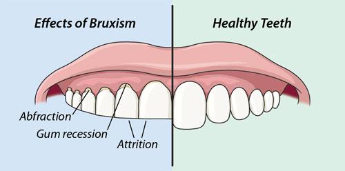 Tác hại của tật nghiến răng bạn nên biết
