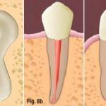 Tuổi thọ của răng sau khi chữa tủy là bao lâu?
