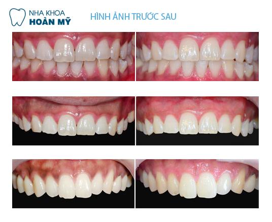 Những nguyên nhân gây sưng chân răng cơ bản 3