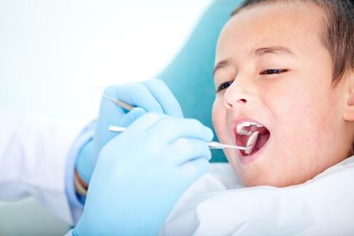 Răng sữa bị sâu chữa có hết không thưa bác sỹ?