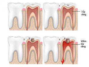 Cấy ghép răng implant trong nha khoa