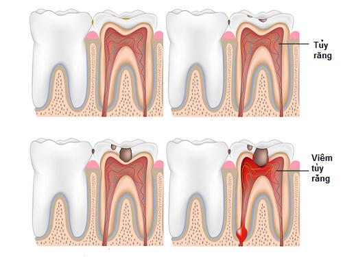 Có nên điều trị bệnh viêm tủy răng ở trẻ hay không? 2