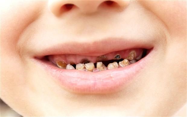 Những tác hại sâu răng sữa ở trẻ em bạn nên biết