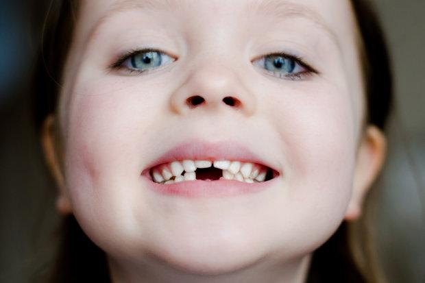 Những tác hại sâu răng sữa ở trẻ em bạn nên biết 3