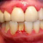 Chảy máu chân răng bị bệnh gì? Có chữa được không?