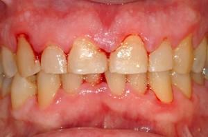 Bệnh viêm chân răng có nguy hiểm không?