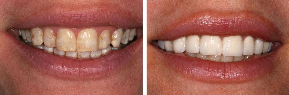 Bệnh thiếu sản men răng có thể chữa bằng cách nào?