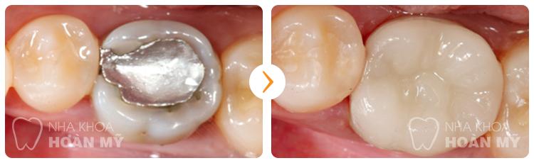 Những điều cần biết về răng sứ cercon và cercon HT