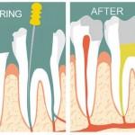 Lấy tủy răng có hại và ảnh hưởng gì không?