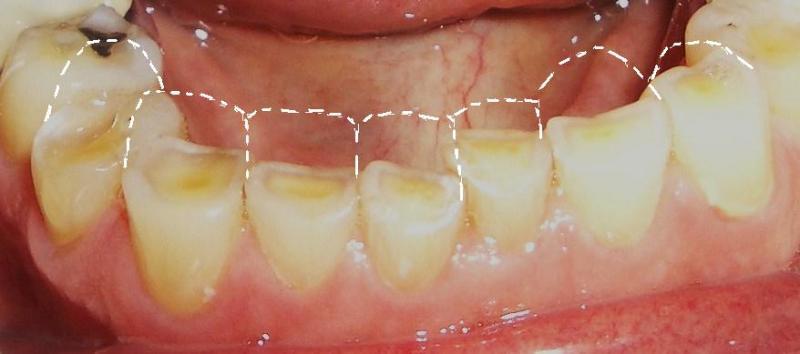 Bị mòn men khi nghiến răng khắc phục như thế nào?