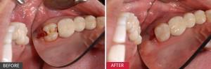 Răng khôn hàm trên bị sâu, chữa thế nào?